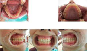 invisalign i7 clincheck 3d - apiñamiento dental con retrusión de incisivos - antes y después