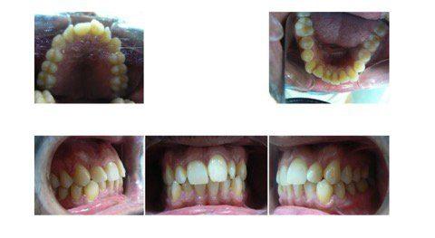 Invisalign Full opiniones: tratamiento para dientes apiñados