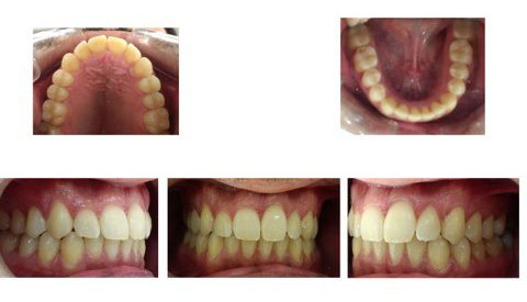 invisalign Comprehensive opiniones