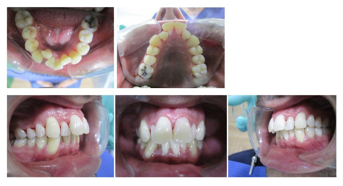 Antes y Después invisalign - Caso real J. Paciente
