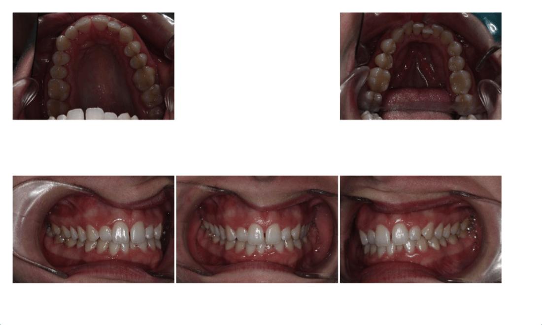 Invisalign Full - Caso real - Apiñamiento arcada inferior y diastema interincisivo superior