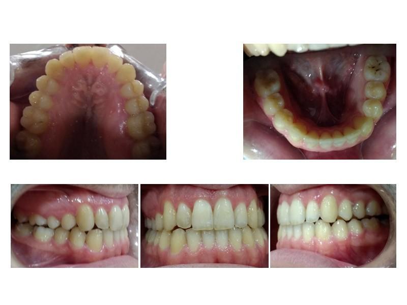 Caso real - Mordida cruzada anterior y posterior bilateral con Invisalign