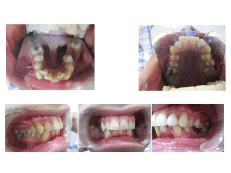 Invisalign en caso de maloclusión de clase I con apiñamiento - Dra. Sara Gil - Ortodoncista