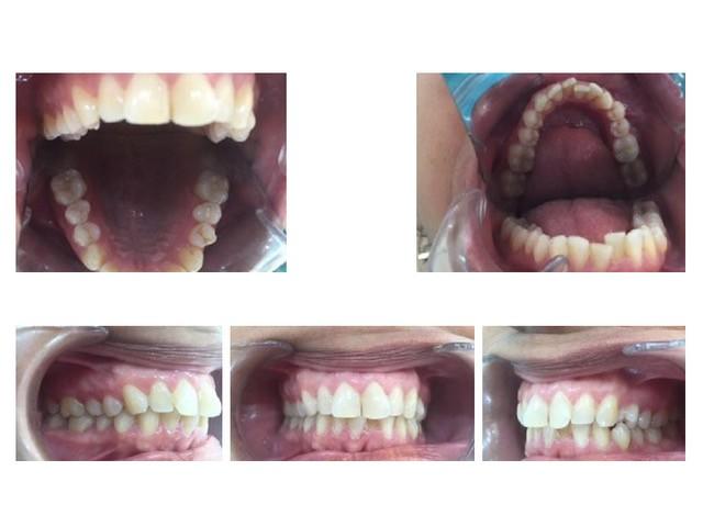 giroversión dental