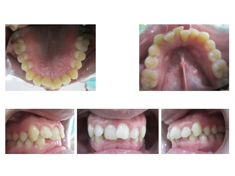 Caso real - apiñamiento dental severo