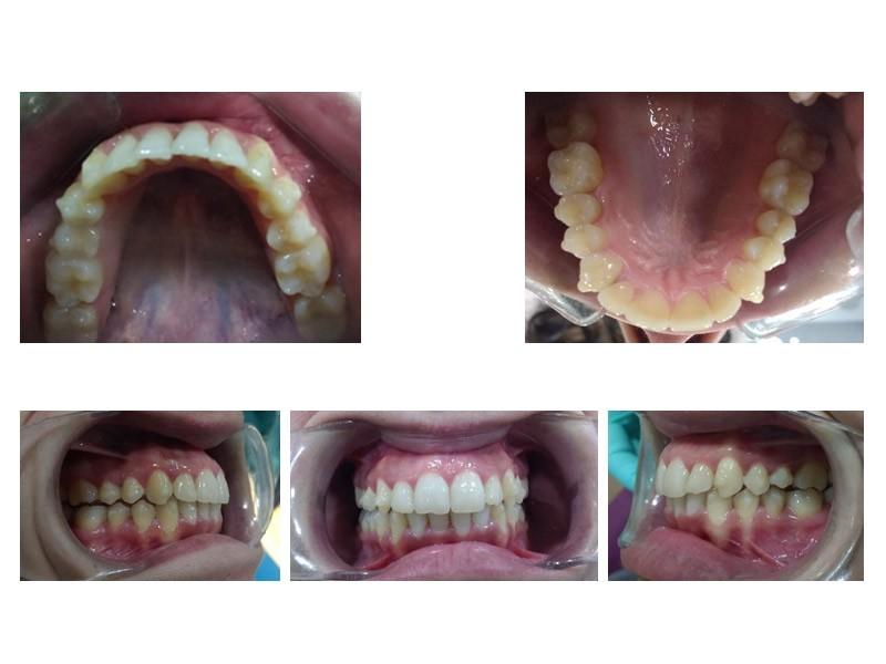 Caso real – Tratamiento Invisalign para malposición dental