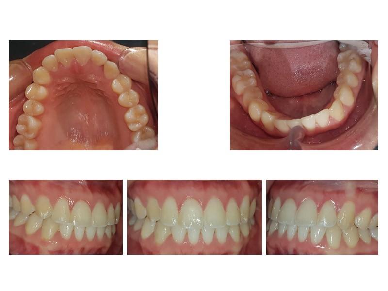 Colmillo en palatino y apiñamiento dental severo - Corregido con Invisalign
