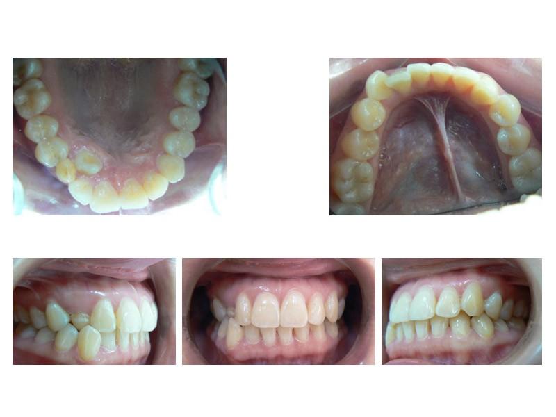 Colmillo en palatino y apiñamiento dental severo