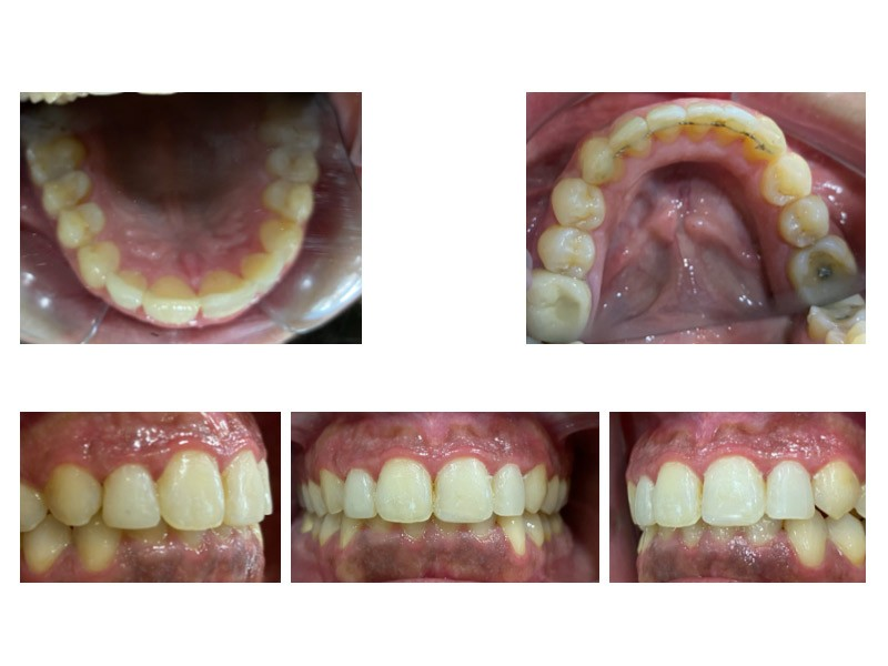 Caso real - Inclinación dental y sobremordida - corregido con Invisalign