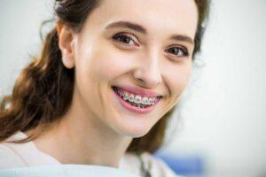 Aparatos dentales: Qué son y cuál es su función