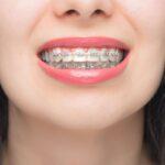 https://invisalignsaragil.es/que-es-la-ortodoncia-autoligable/