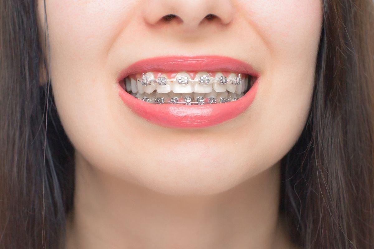 ¿Qué es la ortodoncia autoligable?