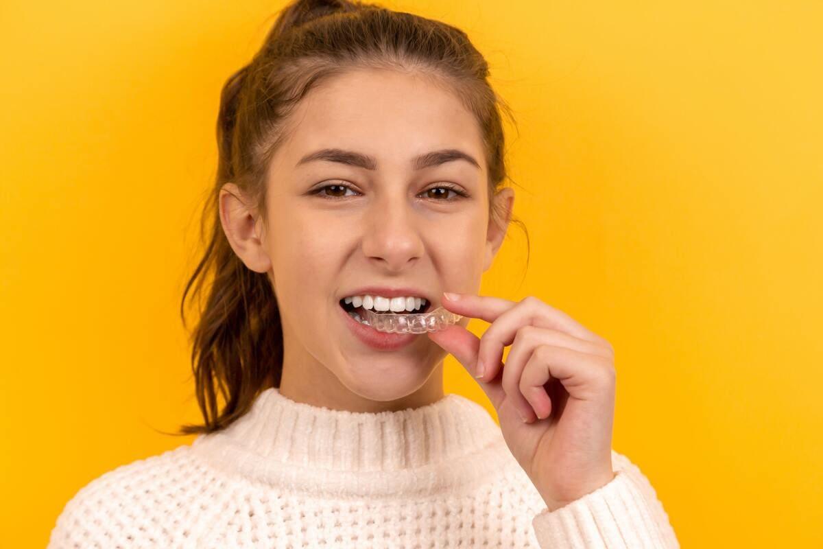 Aparatos dentales: precio y tipos de ortodoncia